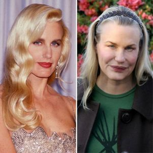 Plastic Surgery of Hollywood Beauties Became Scariest…