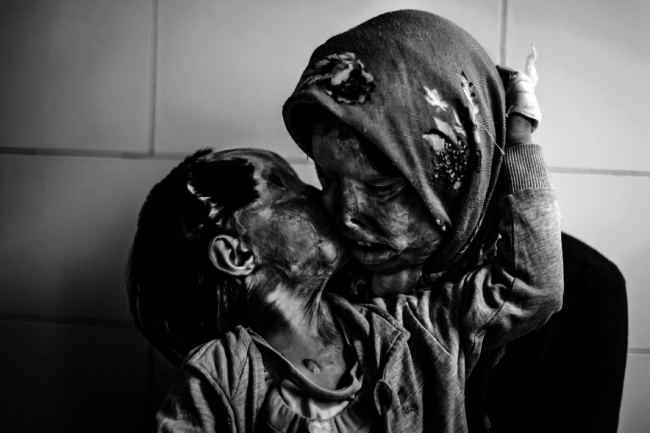 A mother and her 3 year-old daughter, who were attacked with acid by their husband