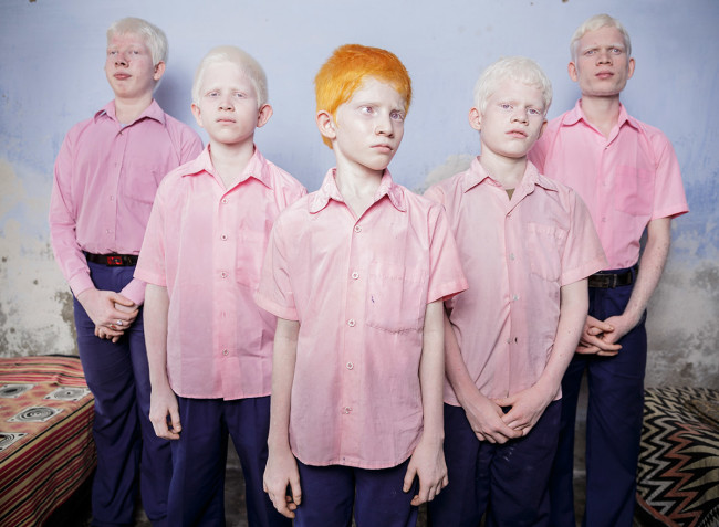 Blind albino boys in their boarding room at a mission school for the blind in West Bengal, India, 2013