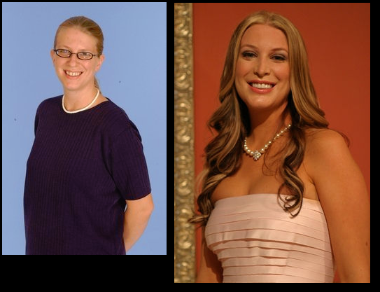 "Fox used to have an absurd show called ""The Swan"" where 'ugly' women were given loads of plastic surgery and then competed against each other in a beauty contest. These are some of the before and afters."