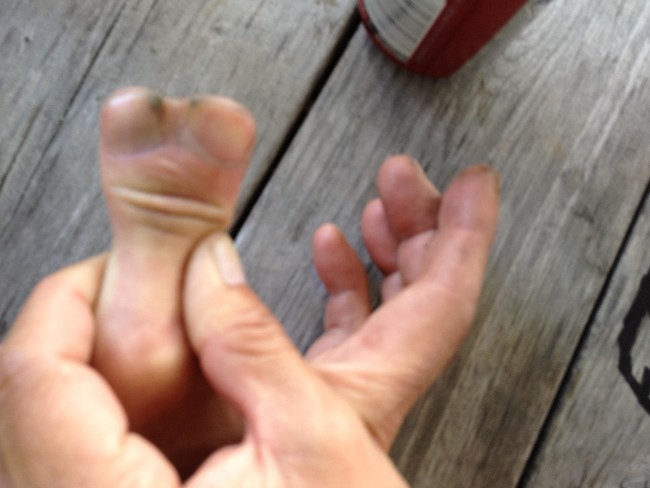 Met a man at the park last year with an interesting looking thumb.