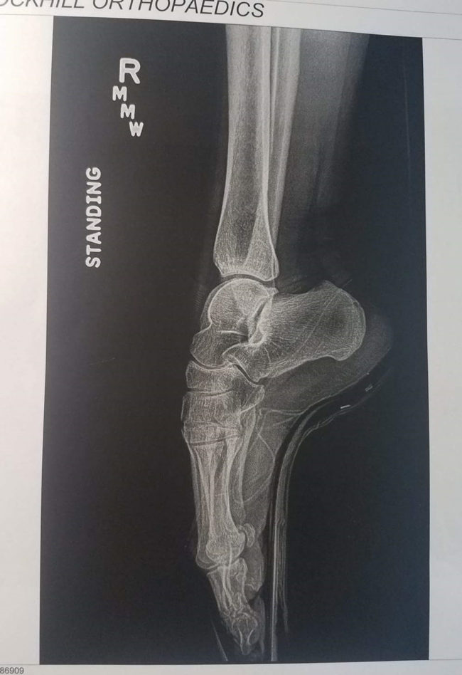 My wife's a ballerina, this is her xray while en pointe